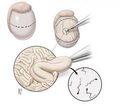 Bdsm surgical semen extraction group gentleman